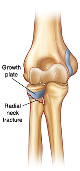 Front view of elbow joint showing growth plate on radius. Radial neck fracture goes through growth plate and bone.