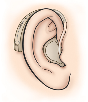 Ear showing hearing aid in ear canal with part of hearing aid behind the ear.