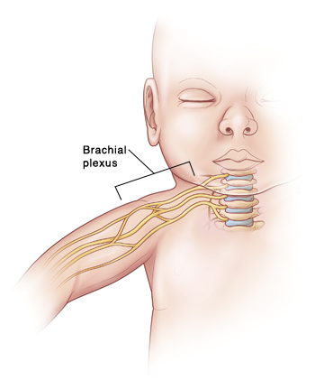 Outline of baby showing nerves coming from spine in neck and going down arm. Brachial plexus is group of nerves in neck and shoulder.