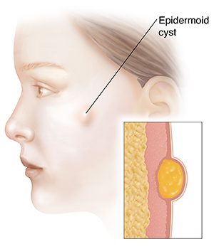 Side view of woman's head showing epidermoid cyst. Inset shows cross section of epidermoid cyst.