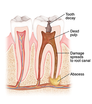 Cross section of tooth with decay, dead pulp, and abscess.